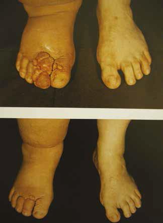 edem la picioare dureros vene la picioare tratament