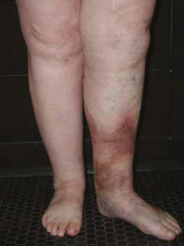 boală de stază venoasă cronică