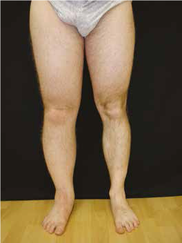 ce mă face să mă umfle picioarele și gleznele ce înseamnă edemul extremităților inferioare