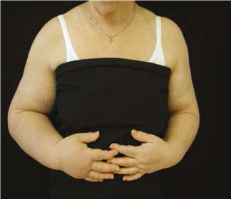 exercitii pentru edem limfatic